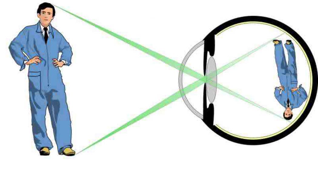 vision x 1
